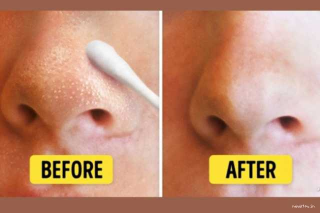 natural-ways-to-remove-blackheads