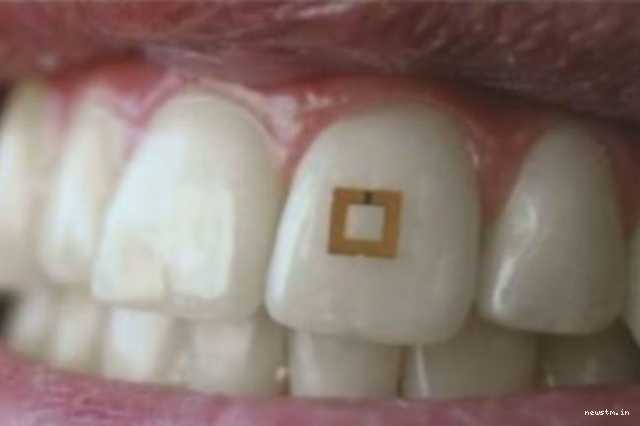 scientists-develop-tiny-tooth-mounted-sensors-that-can-track-what-you-eat