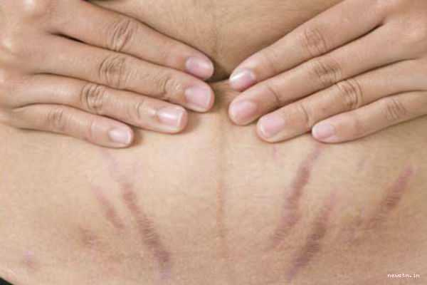 home-remedies-for-stretch-marks