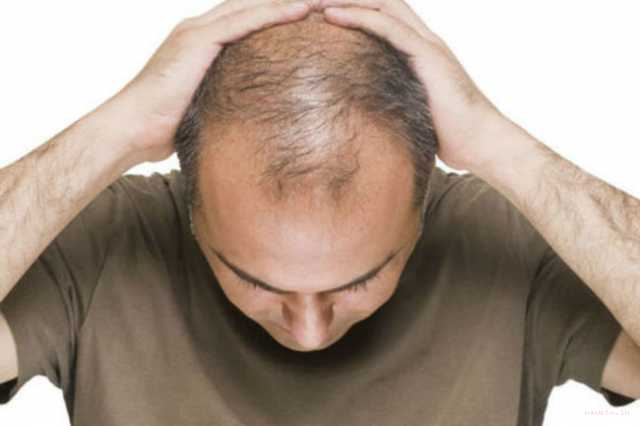 osteoporosis-drug-could-cure-baldness