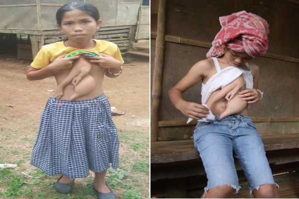 teen-with-four-arms-and-extra-torso-to-have-parasitic-twin-removed-from-chest