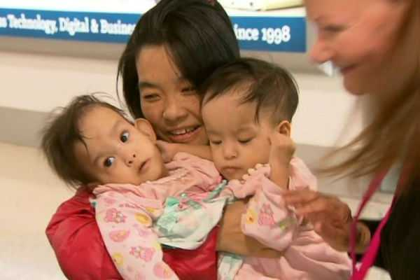 14-month-old-conjoined-twins-from-bhutan-arrive-in-australia-for-separation-surgery