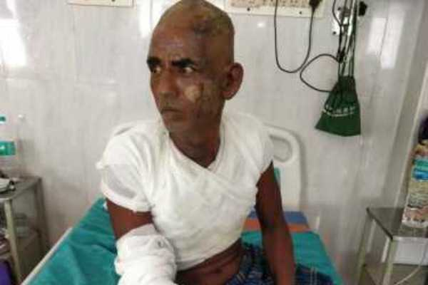 thiruvanmiyur-youth-arrested-after-setting-fire-to-old-man