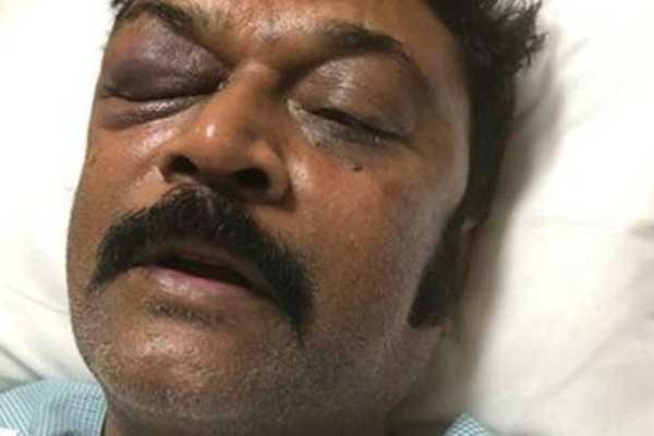 karnaataka-attempt-to-murder-case-against-congress-mla-jn-ganesh