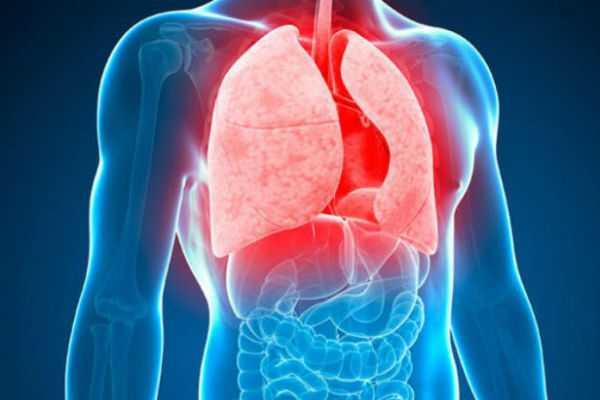 tuberculosis-symptoms-and-causes