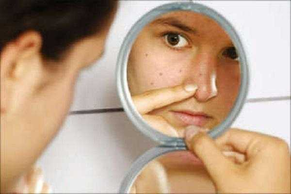 home-remedies-to-treat-adult-acne