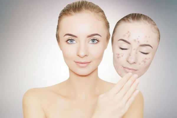home-remedies-to-get-rid-of-black-spots