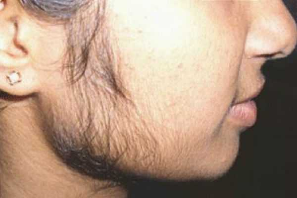 face-hair-removal-fruit