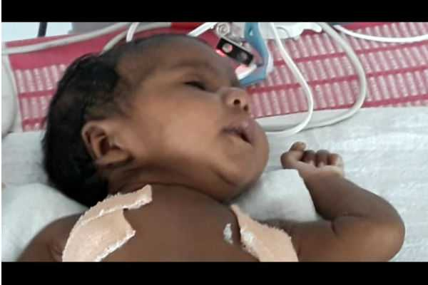 lung-surgery-has-been-performed-for-a-27-days-old-baby