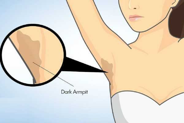 underarms-solutions