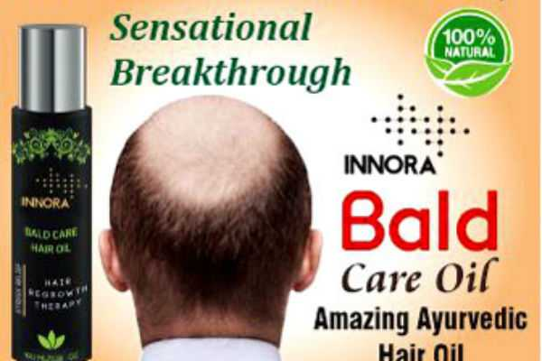 special-article-about-baldness
